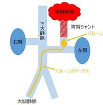 胃静脈瘤に対するBRTO 保本卓