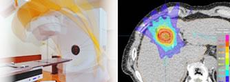 肝がんに対する放射線治療