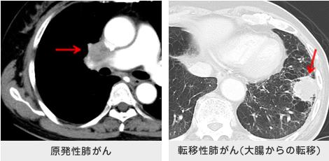 肺癌 原発 性